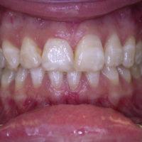 Zahnpflegetipps Fluorose
