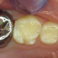 MIH Zahn mit Kinderkrone_r