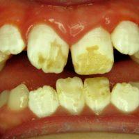 Zahnpflegetipps Fluorose 2