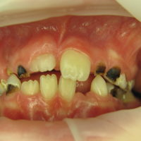 extrem kariöse Zähne 2